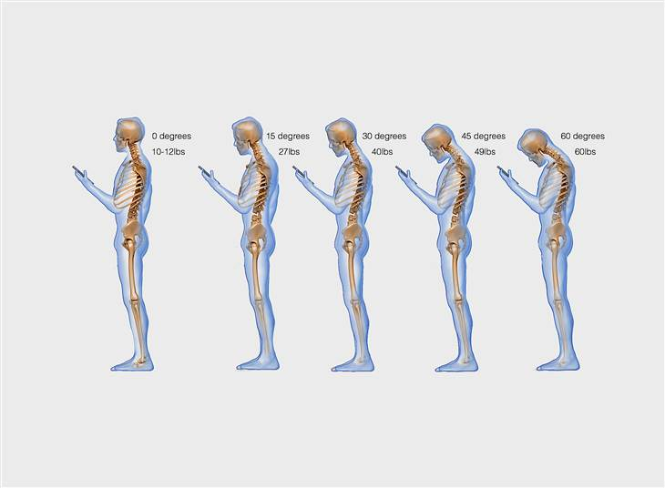 How Your Smartphone Is Damaging Your Spine And Hands